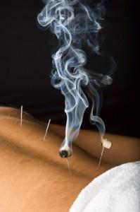 Heiße Nadel, Akupunktur,