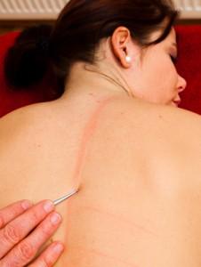 Akupunkturmassage